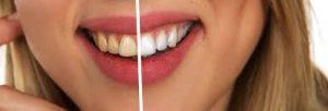 Frau zeigt Zähne